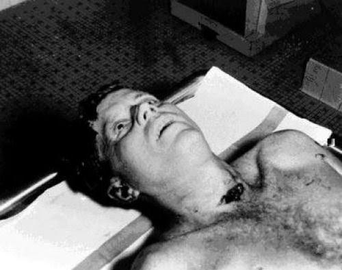 Presidente Kennedy morto